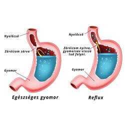 reflux tünetei és okai