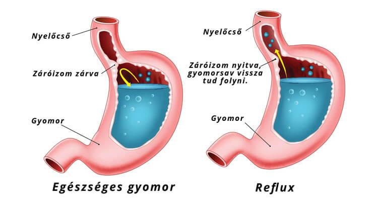 reflux tünetei, gyomorsav