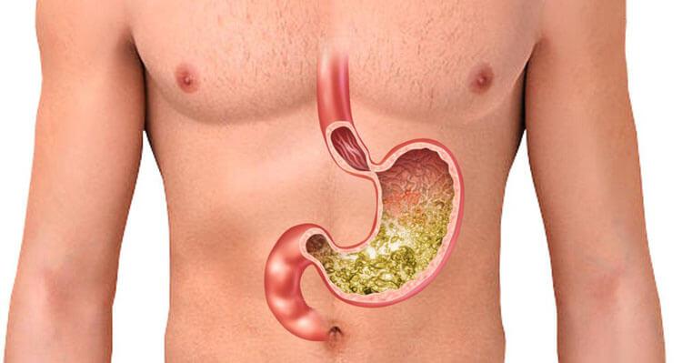 H2 receptor blokkoló gyógyszerek a reflux kezelésére