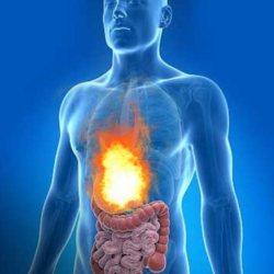gyomorsav ellen szódabikarbóna